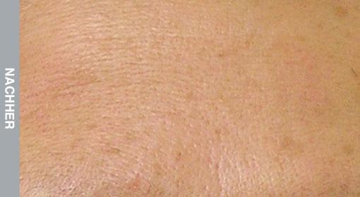 HydraFacial Behandlung feiner Falten und Linien