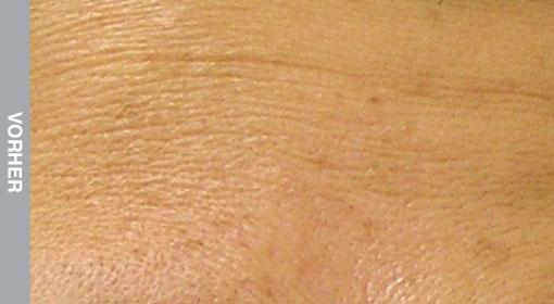 HydraFacial Behandlung feiner Linien und Falten, Linien und Elastizitätsverlust