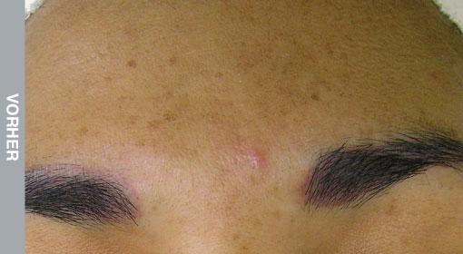 HydraFacial Behandlung Hyperpigmentierung und Pigmentstörung