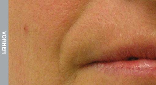 HydraFacial Behandlung Nasolabialfalte