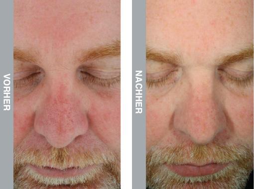HydraFacial Behandlung nach Sonnenschaden